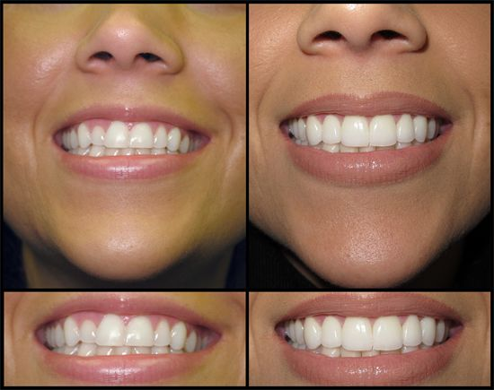 Dentaltown - Cosmetic dentistry is generally used to refer to any dental work that improves the appearance (though not necessarily the function) of a person's teeth, gums and/or bite. It primarily focuses on improvement dental aesthetics in color, position, shape, size, alignment and overall smile appearance. This case is a case of dental veneers.
