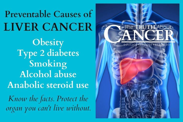 Know the facts! Protect the organ you can't live without. Preventable causes of LIVER CANCER: Obesity, type 2 diabetes, smoking, alcohol abuse, & anabolic steroid use. Please re-pin to help us educate others! // The Truth About Cancer