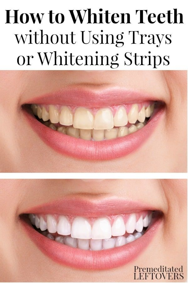 Need a peroxide-free way to whiten your teeth? Here's How to Whiten Your Teeth without Using Whitening Strips or Trays. Try this whitening toothpaste.