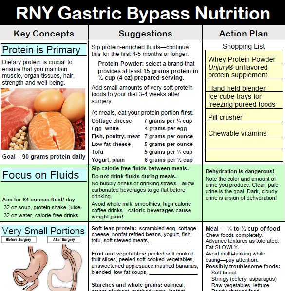 RNY Gastric Bypass Nutrition