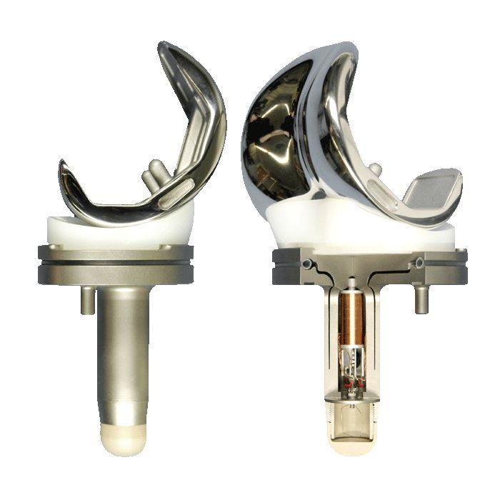 Knee replacement - La Unidad Especializada en Ortopedia y Traumatologia www.unidadortopedia.com PBX: +571-6923370, Móvil: +57-3175905407, Bogotá, Colombia.