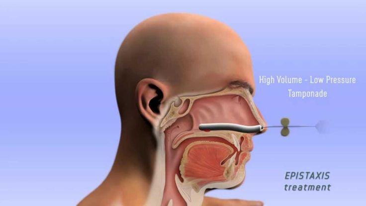 Epistaxis Treatment - 3D