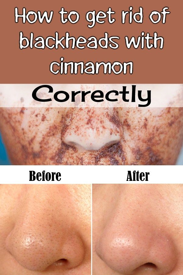 how to get rid of blackheads on buttocks