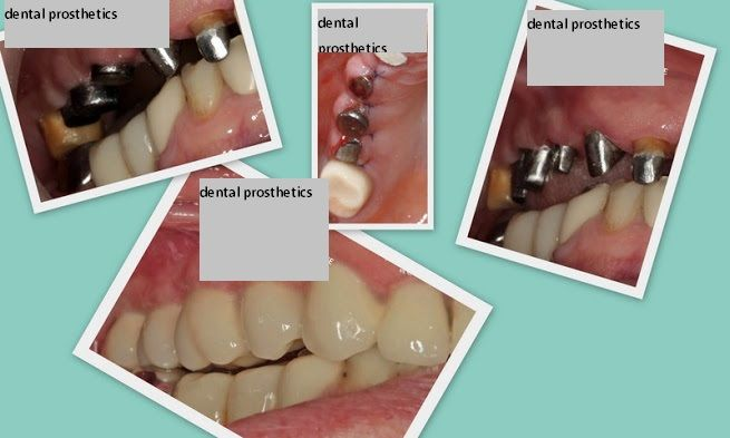 #dental #prosthetics