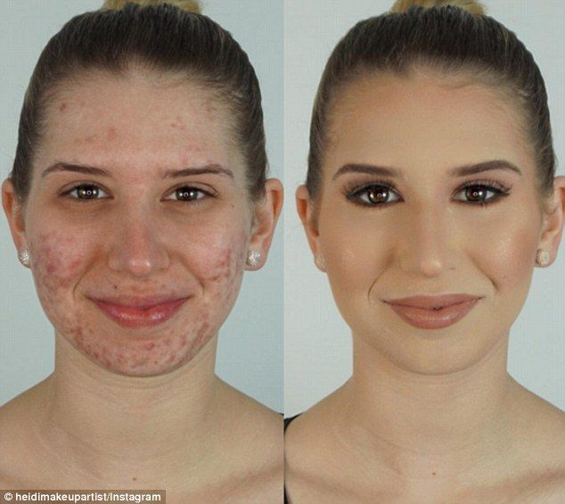 Banish blemishes: Melbourne vlogger Heidi Hamoud revealed how to cover acne in a 10-minute make-up tutorial