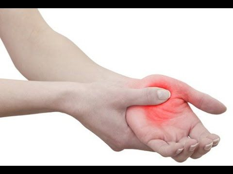 ¿Sabes por qué se adormecen tus manos mientras duermes? ¿Como solucionarlo?