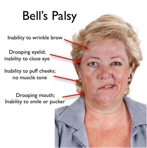 best 25+ bell's palsy ideas on pinterest | do facial exercises, Cephalic Vein
