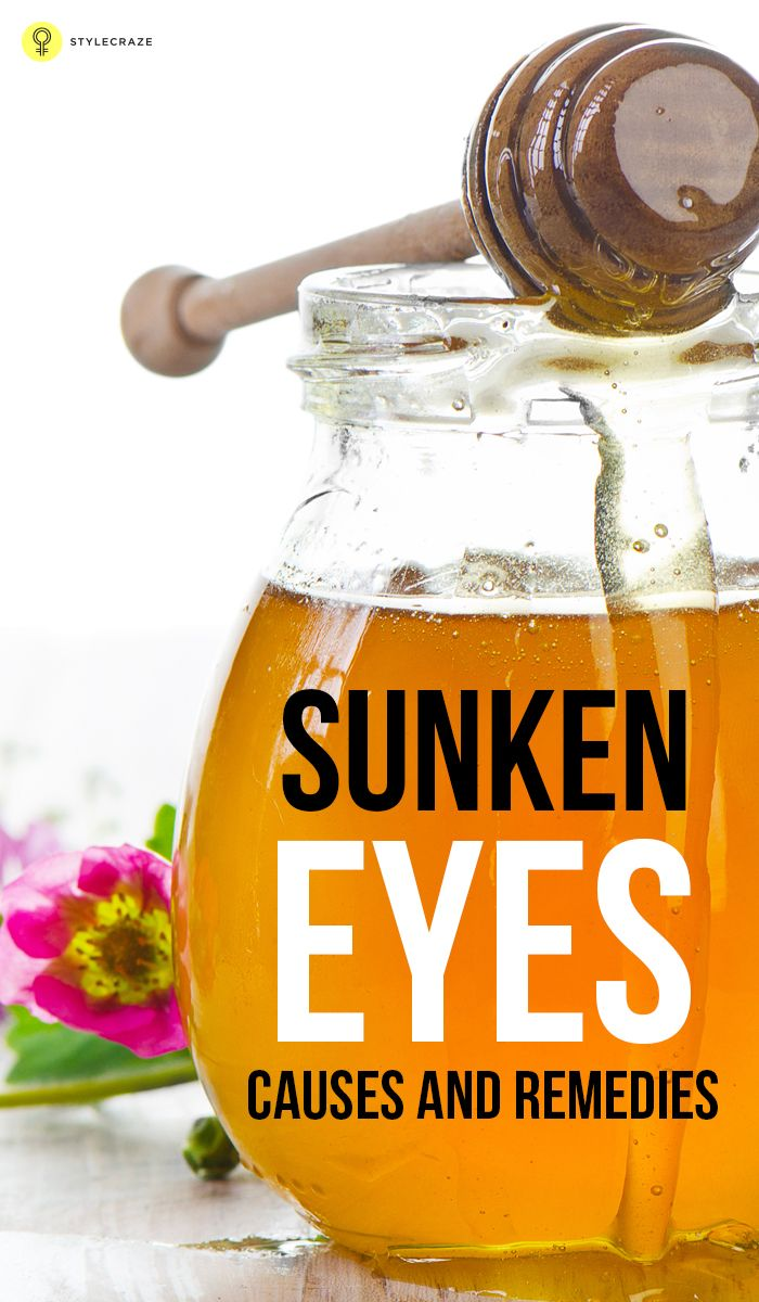Sunken eyes appear with age. Know the other causes and the remedies for sunken eyes. Say which remedy for sunken eyes works good if you happen to have sunken eyes.