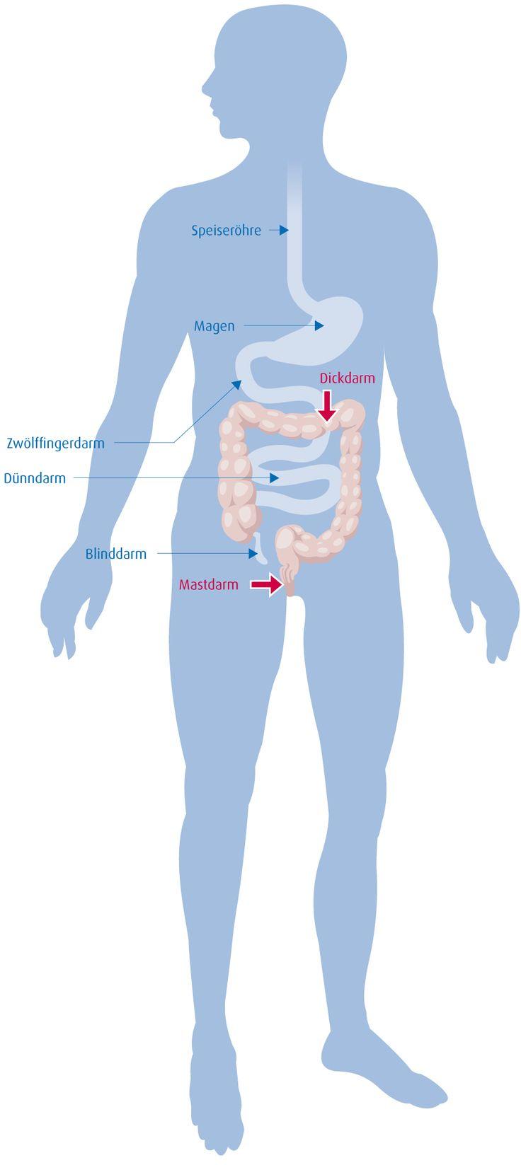 Sie haben es sicher schon oft verspürt: Immer wenn Sie im Job unter Druck geraten, verkrampfen Magen und Darm. Der Magen-Darm-Trakt ist ein sehr sensibles Organsystem und reagiert schnell und gereizt, wenn der Körper unter Strom steht. Das geschieht, wenn Stresshormone wie Cortisol und Adrenalin ausgeschüttet werden. Auch das Essverhalten verändert sich bei Stress. Viele Menschen greifen in Belastungssituationen verstärkt zu Speisen mit viel Zucker und Fett. (Quelle: Ortenau Klinikum)