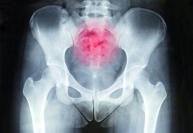 El dolor en la espalda baja es casi una experiencia de todos. Es muy común que este dolor aparezca en nuestras vidas por diversos motivos, entre ellos el quiste