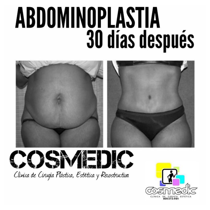 ABDOMINOPLASTIA  Es un procedimiento quirúrgico diseñado para disminuir el abdomen que sobresale, esto se logra ajustando los músculos de la pared abdominal y removiendo el exceso de grasa y piel.  Este procedimiento es muy común y beneficia bastante a mujeres y hombres que están afectados por un abdomen pronunciado.  COSMEDIC, Clínica de Cirugía Plástica, Estética y Reconstructiva.   Tel.8095734101 what.8498157247  Mail: cosmedic@hotmail.es  BENITO MONCION No. 14 ESQ. JUANA SALTITOPA, LA…