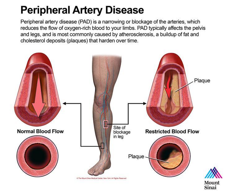 an pathology research on peripheral vascular disease Location and associated pathology: coronary artery atherosclerosis ( aka coronary artery disease ) - myocardial infarction +/-coronary thrombosis atherosclerotic peripheral vascular disease - leg amputations .