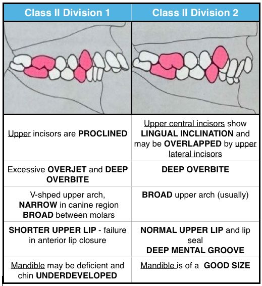 Class Ii Malocclusion Has 2 Subtypes To Describe The