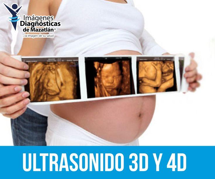 ¡Puedes ver el rostro de tu bebe antes de que nazca! Realice un Ultrasonido 4D.