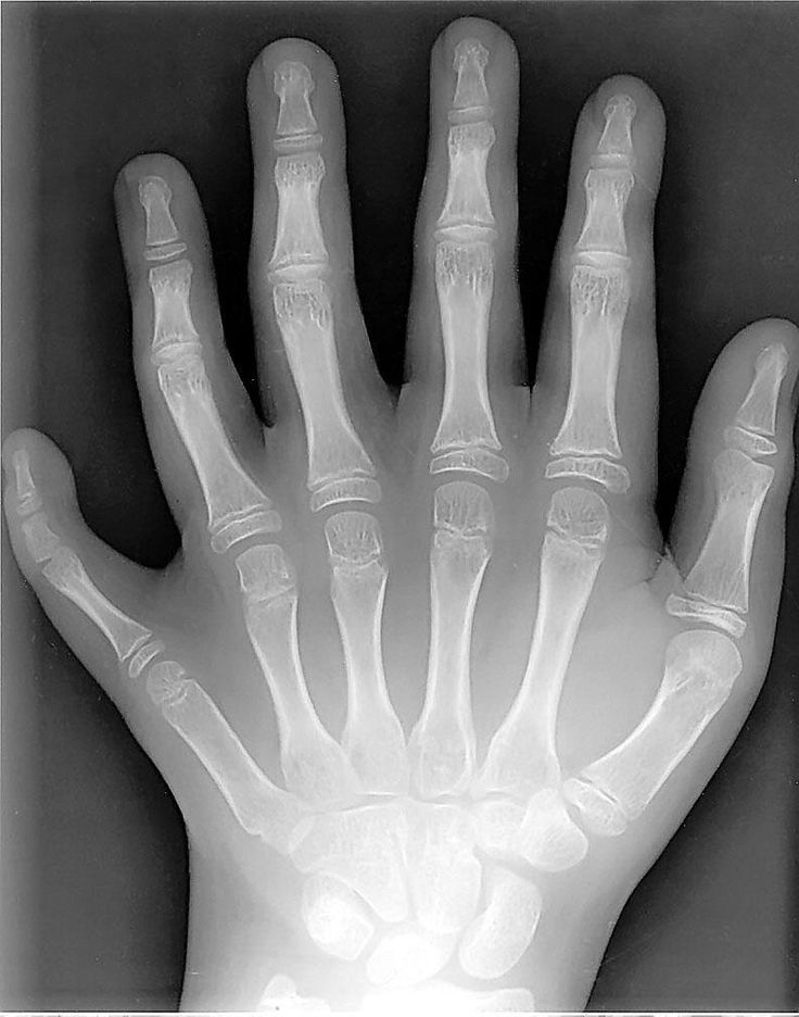 HAND OF A GIANT? And there was war again with the Philistines; and Elhanan the son of Jair slew Lahmi the brother of Goliath the Gittite...nephilim have 6 fingers and toes