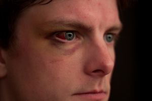 The seven most common causes of red eyes