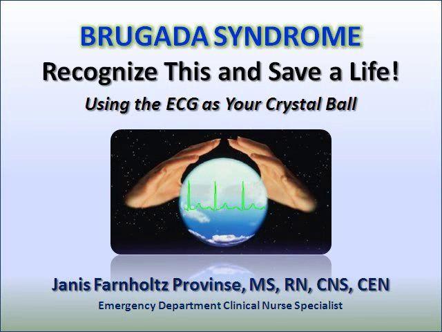 Brugada Syndrome on Vimeo