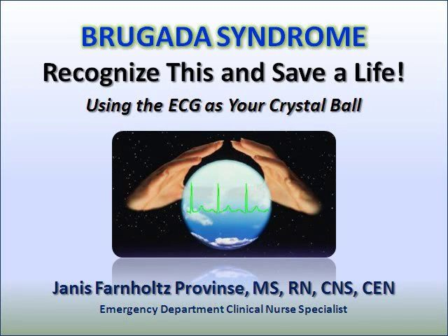 Brugada Syndrome on Vimeo