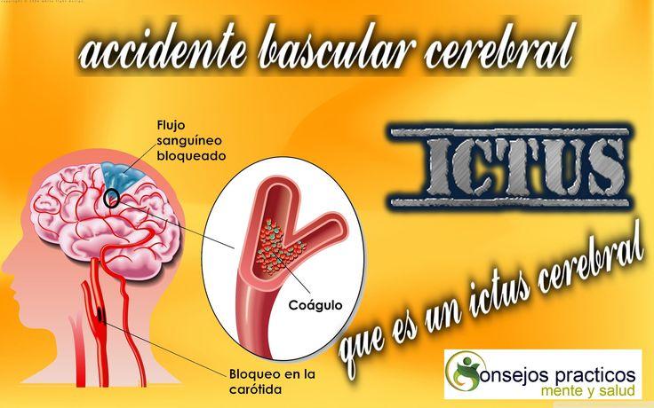 que es un ictus cerebral o accidente vascular cerebral jugos naturales d...