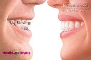 Voucher Potongan Harga Pemasangan Kawat Gigi / Behel Logam Di Klinik Dentist and Team Senilai Rp.2 Juta Hanya Rp.79,000 - www.evoucher.co.id #Promo #Diskon #Jual  Klik > http://evoucher.co.id/deal/Voucher-potongan-harga  Dengan membawa voucher ini, Anda bisa mendapatkan potongan Pemasangan Kawat Gigi / Behel Logam di Klinik Dentist and Team senilai Rp.2.000.000.. jadi kamu cukup membayar langsung di Klinik Dentist and Team hanya Rp.4,000,000 dari harga normal Rp.6,000,000
