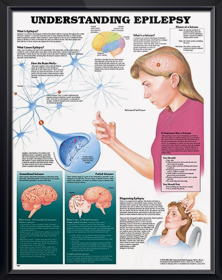 Understanding Epilepsy anatomy poster shows brain activity and defines the main forms of generalized and partial seizures. Neurology chart for doctors and nurses.