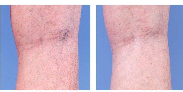 Звездочки на ногах — головная боль  большинства женщин. Звездочками принято называть сосудистые сеточки,  которые выступают под кожей. Как правило, они имеют малиновый или  фиолетовый оттенок. В итог…
