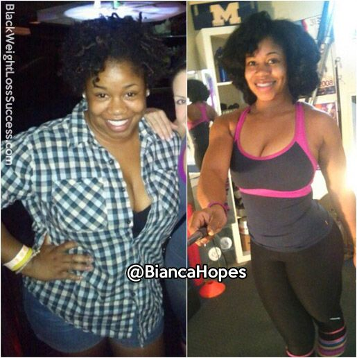 weight loss inspiration stories no surgery