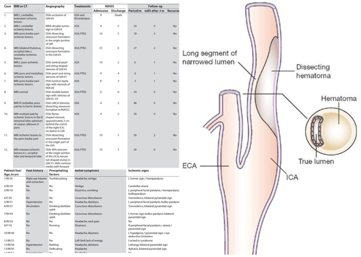 how to find your carotid artery