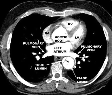 aortic dissection - Google Search