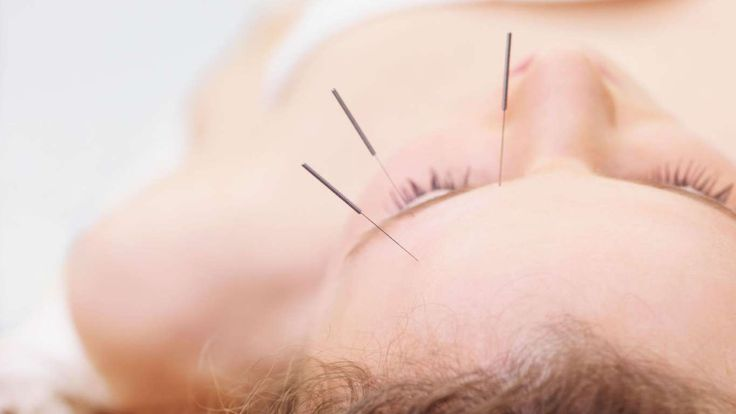 """Even for friends who are generally healthy, I recommend acupuncture to help promote overall well-be... - Getty Images"