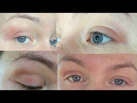 ♡ How I Cured My Eczema/Dermatitis Naturally - EYELIDS & BODY! ♡ - YouTube