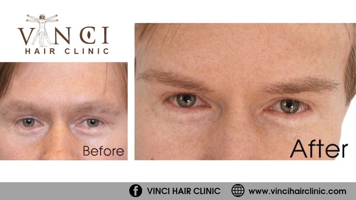 Eyebrow hair transplants are suitable for men and women who want to rebuild density and definition in their brows. Find out more at https://www.vincihairclinic.com/treatments-for-men/hair-transplant/eyebrow-transplant/