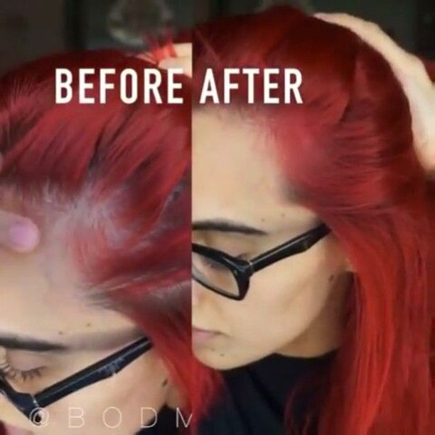 1000 images about hair loss issues on pinterest hair growth  hairs and home remedies   Can Your Hair Fall Out From Coloring It