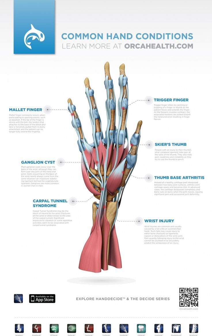 Here are some common hand injuries. CardioFlex has a dedicated Certified Hand Therapist ready to help with treatment for those injuries. #certifiedhandtherapy #carpaltunnelsyndrome #handtreatment http://healthdecide.orcahealth.com/orcatheme_imagepost/infographic-handdecide-poster-common-hand-conditions/