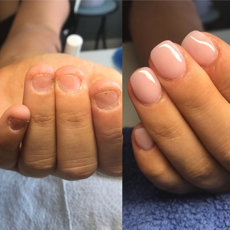 Lets talk BITTEN NAILS!! So I get approached a lot by people who ask Can you do …