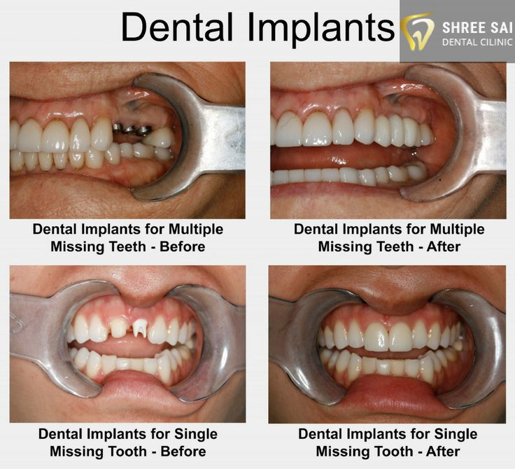 Black Tooth Implant Before And After Las Vegas #tooth