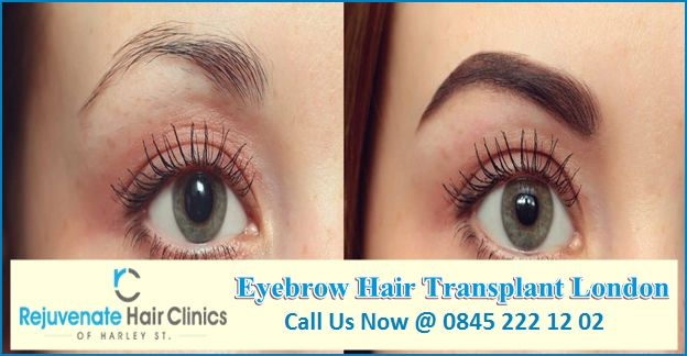 If you are looking  best eyebrow hair transplant in London then rejuvenate hair Clinics is one you must approach. contact us today ! #EyebrowHairTransplantLondon #EyebrowTransplantLondon #EyebrowImplantsUK #EyebrowTransplantUK
