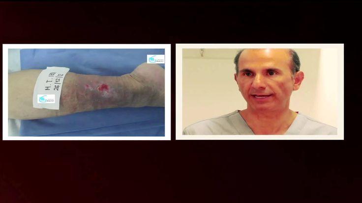 La várice varicosa de la causa de la aparición y el tratamiento