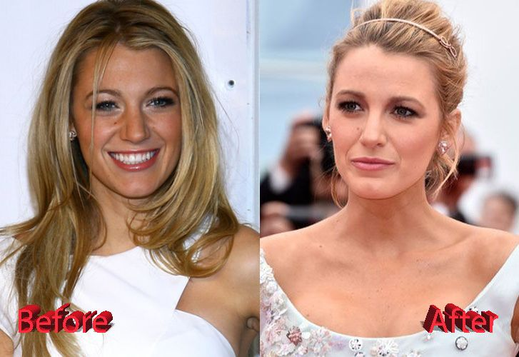 Blake Lively Plastic Surgery Before and After