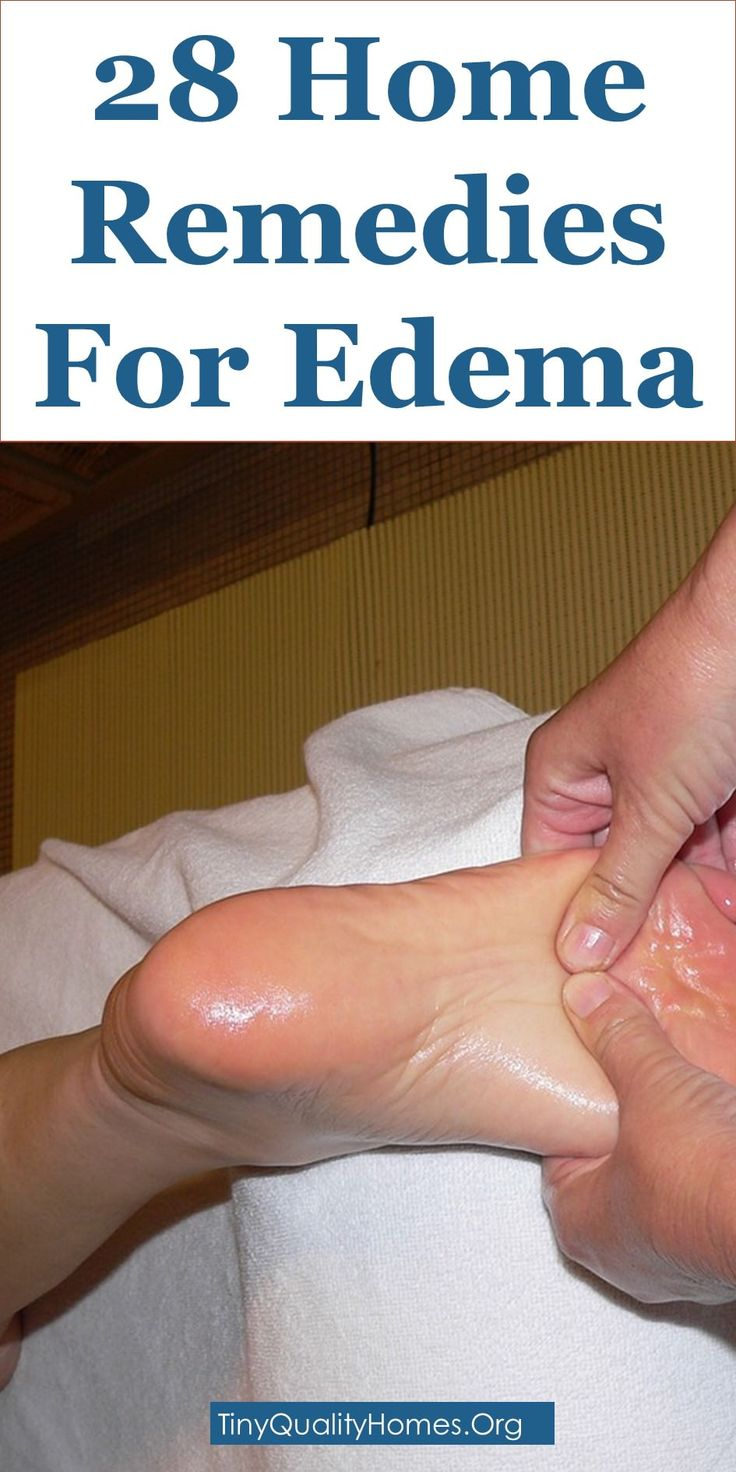28 Effective Home Remedies For Edema: This Article Discusses Ideas On The Following; How To Get Rid Of Edema Edema: Causes, Symptoms, And Remedies, Home Remedies For Edema In Feet And Ankles, Natural Remedies To Get Rid Of Edema, Apple Cider Vinegar Edema, Edema Treatment Diet, Home Remedies For Leg Swelling And Pain, How To Reduce Edema In Feet And Ankles, Home Remedies For Swelling, Face Edema Home Remedies, How To Treat Feet, Ankles, And Legs Edema, Etc.