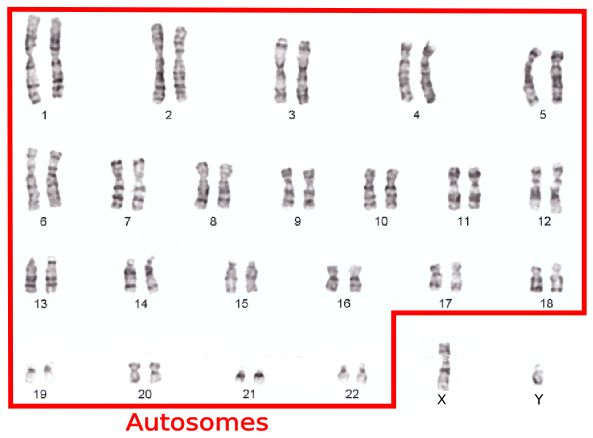 autosome sex chromosome karyotype in Pomona