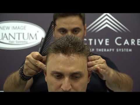 Quantum sistem protez saç uygulaması ile değişimi yakala... - YouTube