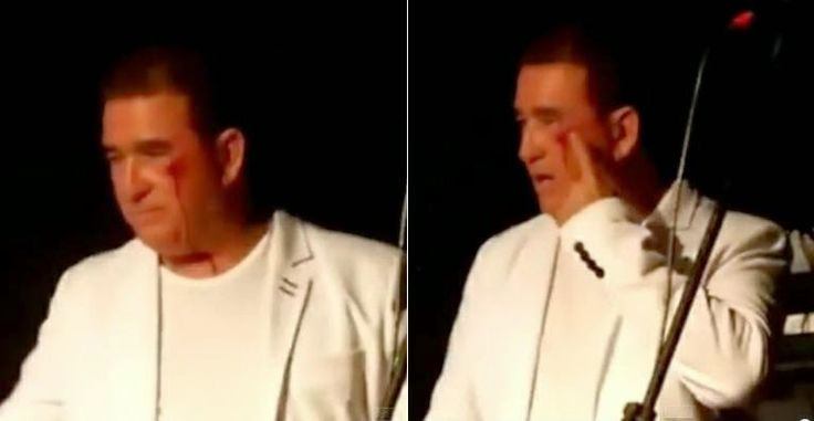 BLOG DO ARRETADINHO: Amado Batista é agredido e deixa palco sangrando