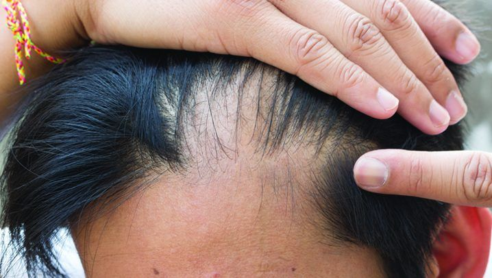 tip-on-how-to-overcome-male-pattern-baldness-1 http://www.hairgrowinggenius.com/