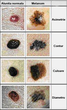 Factorii de risc pentru cancerul de piele - exista o serie de factori de risc pentru dezvoltarea unei forme de cancer de piele si, extrem de important, o parte dintre acesti factori de risc pentru cancer de piele pot fi corectati http://www.medpont.ro/dermato-venerologie/factorii-de-risc-pentru-cancerul-de-piele/
