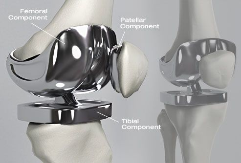 Replacing a Bad Knee  Knee replacement surgery can relieve severe arthritis pain and may help you walk easier. Wear and tear, illness, or a knee injury can damage the cartilage around your knee bones and prevent the joint from working well. If your arthritis symptoms are severe, your doctor may recommend knee replacement.