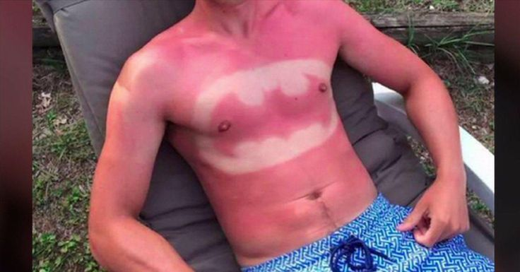 56 Epic and Painful Sunburns
