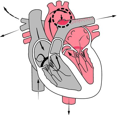Patent ductus arteriosus:  shunt from aorta to pulmonary artery - ACYANOTIC - persistent ductus arteriosus - accounts for 10% CHD cases - SOB, DOE, palpitations, Rt heart failure, paradoxic embolism, recurrent pneumonia, small shunts are asymptomatic, ↑ risk of infective endocarditis and septic pulmonary embolism - machinery murmur in 2nd left anterior IC space after 1st HS