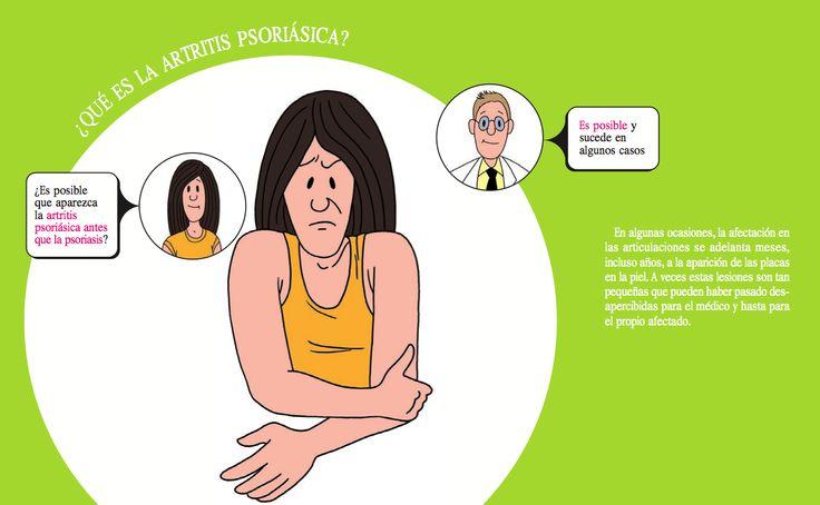 ¿Es posible que aparezca la artritis psoriásica antes que la psoriasis? www.fundapso.org