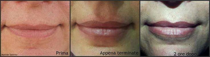 Tatuaggio semipermanente labbra